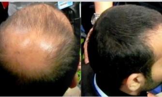 Fibras capilares: disimular las zonas donde hay poco pelo